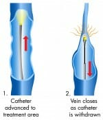 radiofrequency_ablation