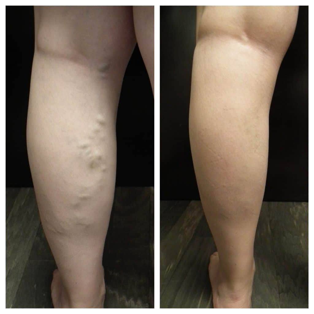Services offered by Red Sands Vein and Laser Institute