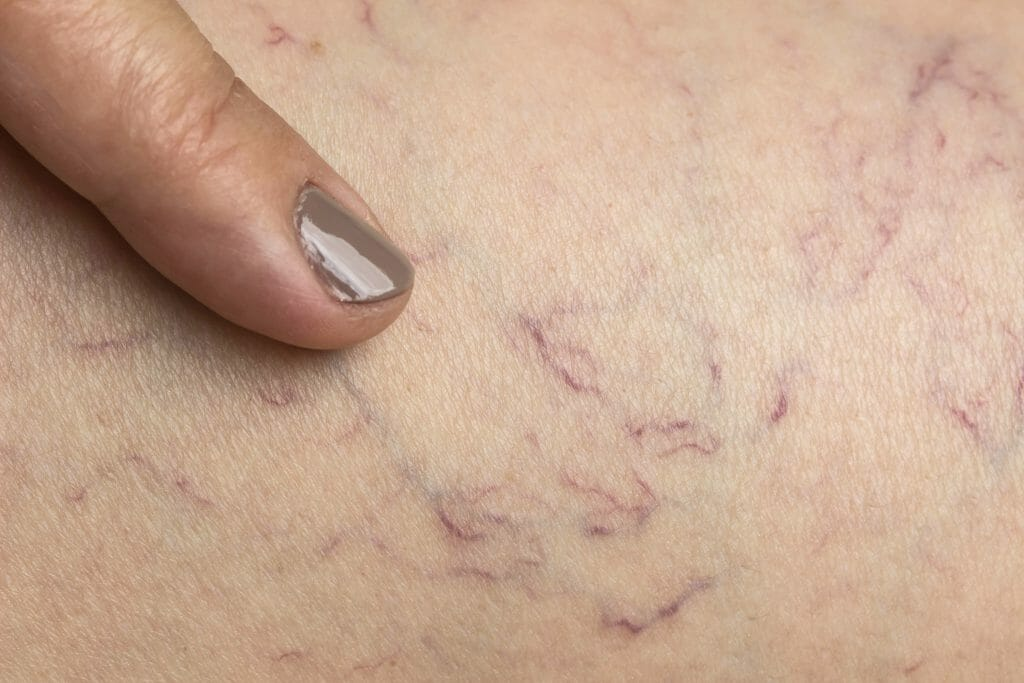Picture of Spider Veins Closeup