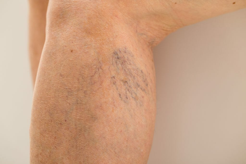 Picture of Spider Veins