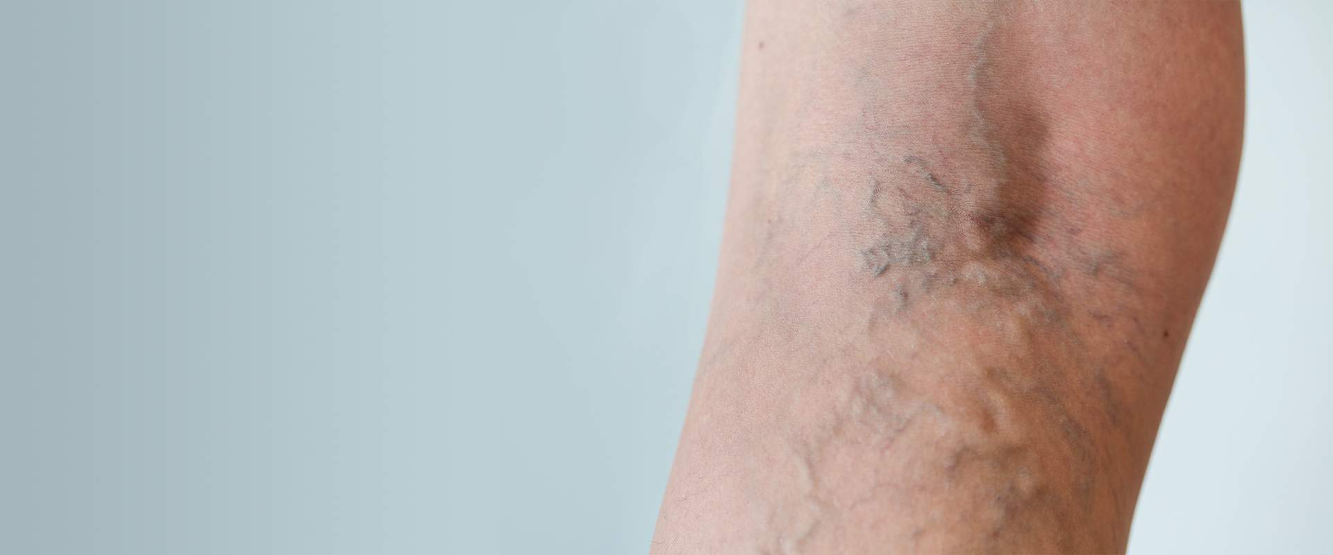 Varicose veins of the pelvis: causes, symptoms and treatment methods 77